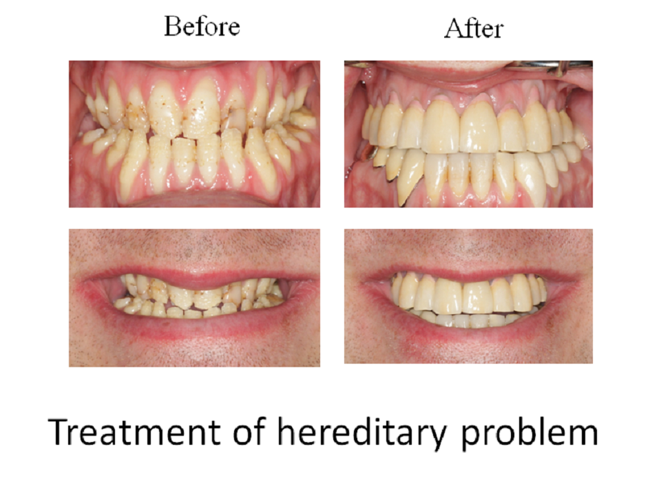 Treatment of hereditary problem