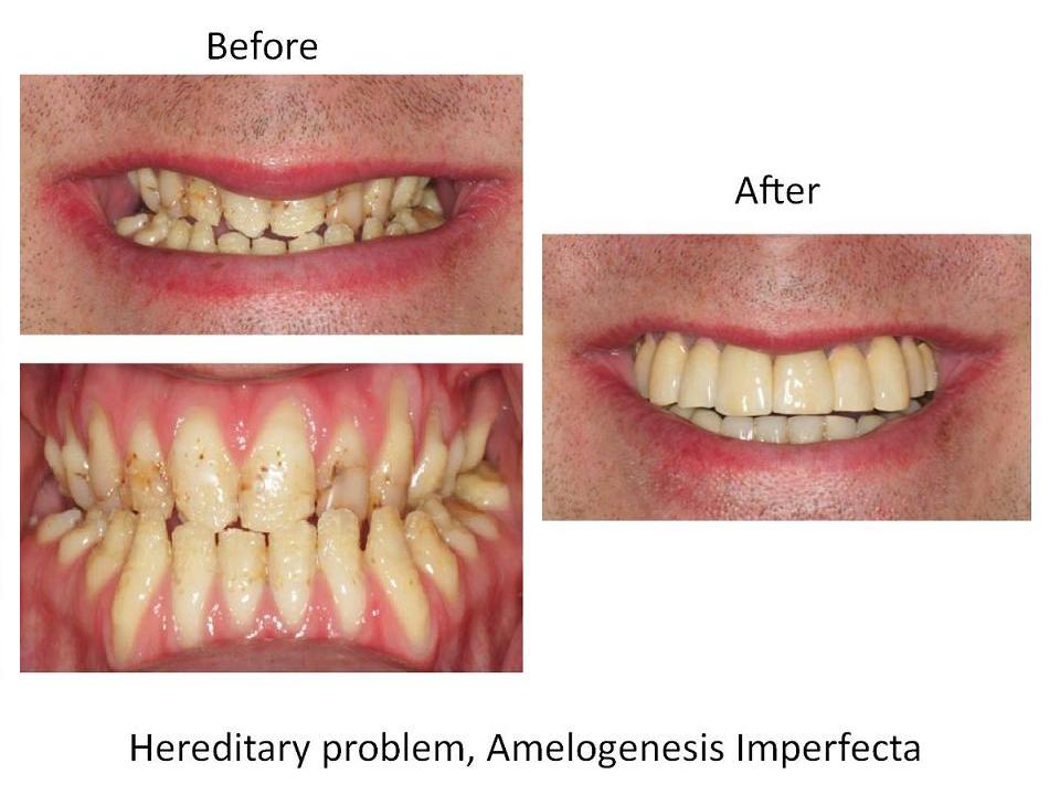 Hereditary problem, Amelogenesis Imerfecta