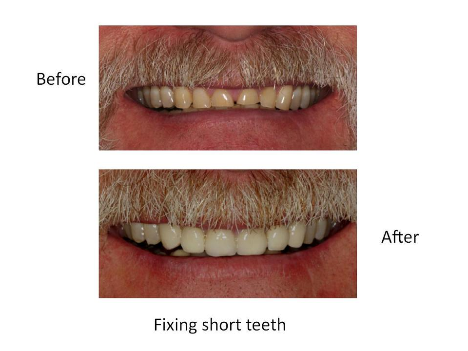Fixing short teeth