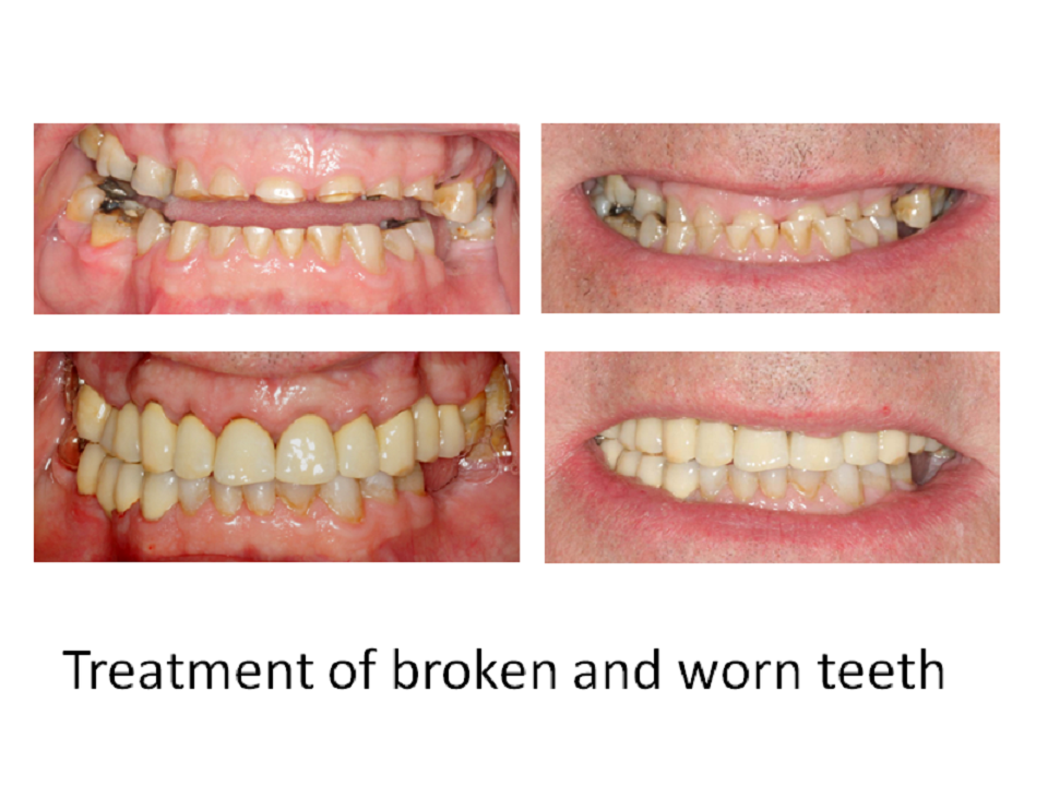 Treatment of broken and worn teeth