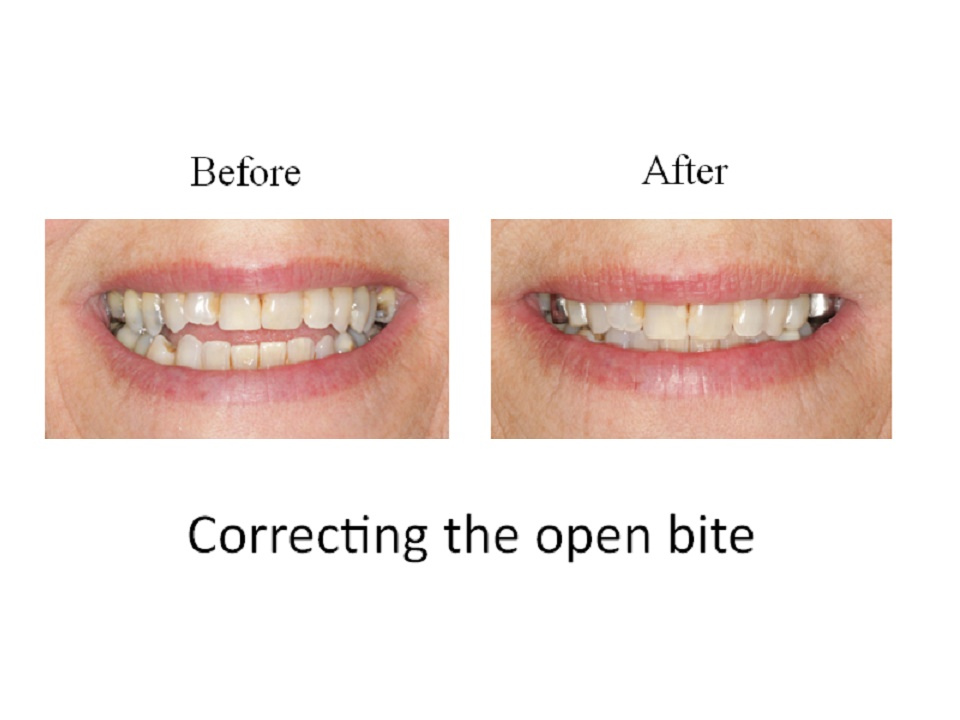 Correcting the open bite