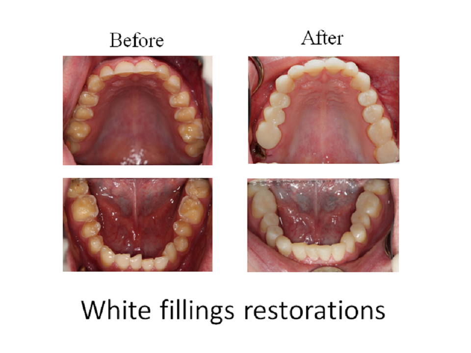White fillings restorations