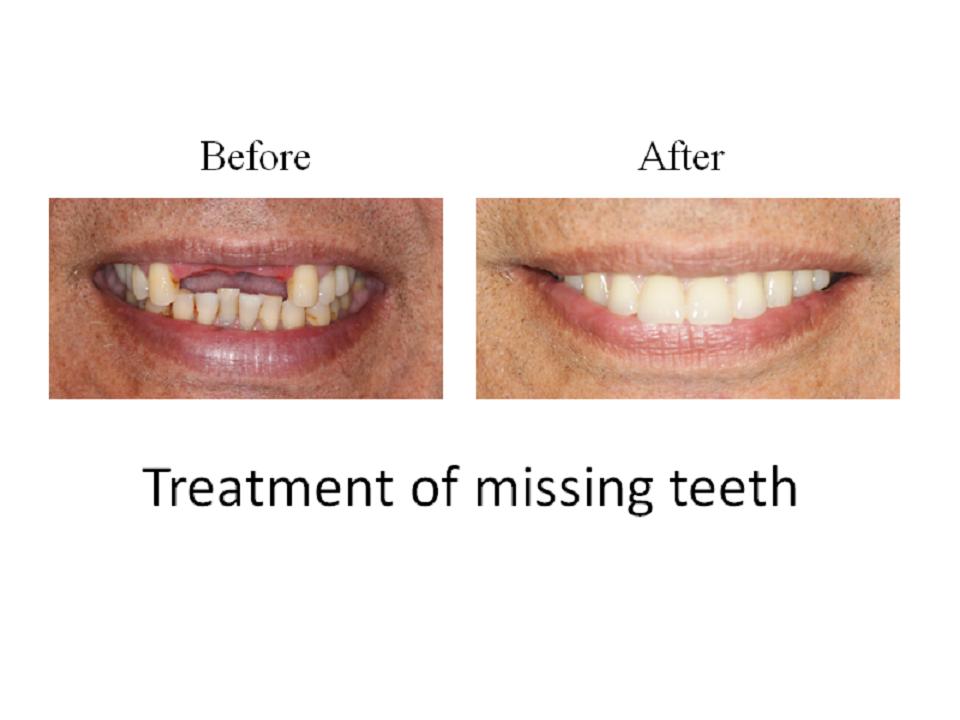Treatment of missing teeth