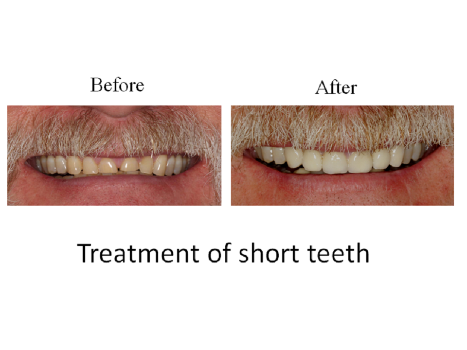 Treatment of short teeth