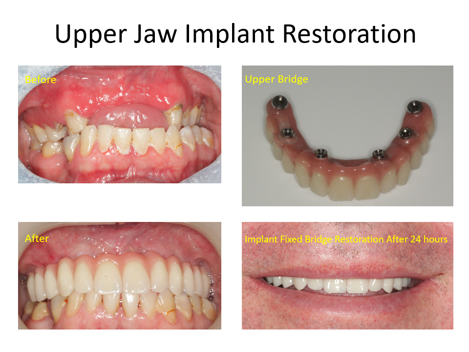 Upper Jaw Implant Restoration