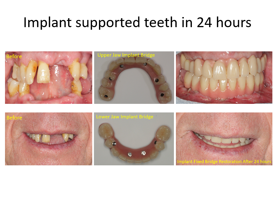Implant supported teeth in 24 hours